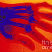 X-ray Of Hand With Rheumatoid Arthritis Poster