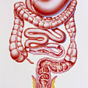 Artwork Of Crohn's Disease And Ulcerative Colitis Poster