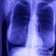 Chest X-ray Of Female Poster