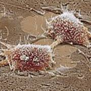 Dividing Cancer Cell, Sem Poster by Steve Gschmeissner