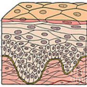 Illustration Of Stratified Squamous Poster by Science Source