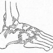 Major Ligaments Of The Foot Poster
