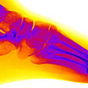 Normal Human Foot Poster