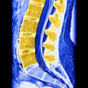 Normal Lumbar Spine Poster