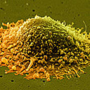 Prostate Cancer Cell, Sem Poster