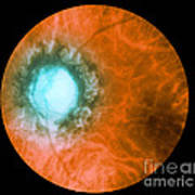 Retina Infected By Syphilis Poster