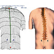 Scoliosis Of The Back, Contour Map Poster