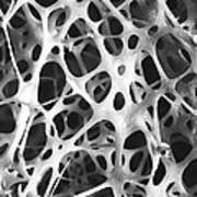 Sem Of Human Shin Bone Poster by Science Source