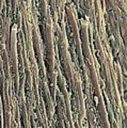 Spinal Cord, Sem Poster