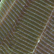 Striated Muscle, Sem Poster