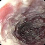 Thrush In The Oesophagus Poster by Gastrolab