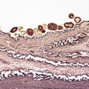 Tongue Bacteria, Tem Poster