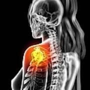 Shoulder Pain, Conceptual Artwork Poster by Sciepro