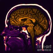Mri Of Normal Brain Poster