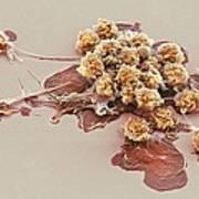 Activated Granulocytes, Sem Poster
