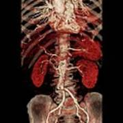 Aortic Aneurysm Ct Scan Poster