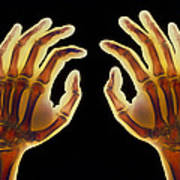Coloured X-ray Of Healthy Human Hands Poster