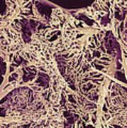 Liver Blood Vessels, Sem Poster