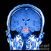 Mri Brainstem Cavernous Malformations Poster
