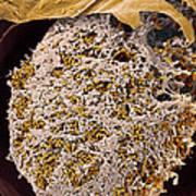 Nitrogen-fixing Bacteria, Sem Poster by Steve Gschmeissner