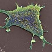 Sarcoma Cancer Cell Poster