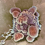 Cancer Cell Apoptosis, Sem Poster