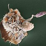Macrophage Attacking A Foreign Body, Sem Poster