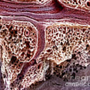 Mouse Lung, Sem Poster by Science Source