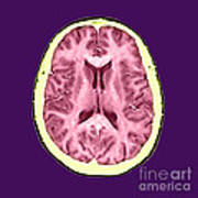 Normal Cross Sectional Mri Of The Brain Poster