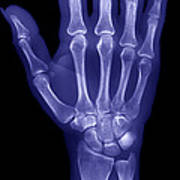 Normal Hand Poster