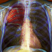 Pneumonia, X-ray Poster