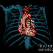 3d Ct Reconstruction Of Heart Poster