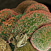 Breast Cancer Cells, Sem Poster