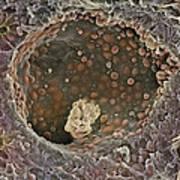Breast Cancer, Sem Poster