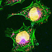 Hela Cells, Light Micrograph Poster