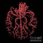Intracranial Ct Angiogram Poster
