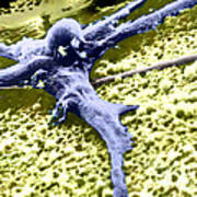 Malignant Cancer Cell Poster
