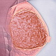 Breast Tumour, X-ray Poster