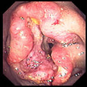 Colon Cancer Poster by David M. Martin, Md
