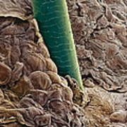 Ear Canal, Sem Poster