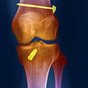 Acl Knee Repair X-ray Poster