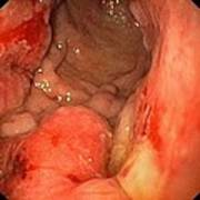 Advanced Stomach Cancer Poster