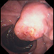 Ampullary Cancer Poster