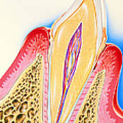 Artwork Of Tooth Showing Periodontal Disease Poster
