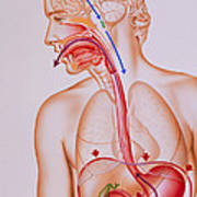 Artwork Of Vomiting Mechanism In Human Body Poster
