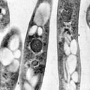 Bacillus Anthracis, Tem Poster