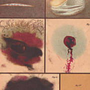 Bloodstain, Blisters, Bullet Holes, 1864 Poster by Science Source