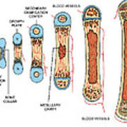Bone Growth Poster by Science Source