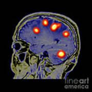 Brain Tumors Poster