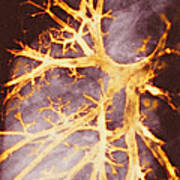 Bronchitis, X-ray Poster